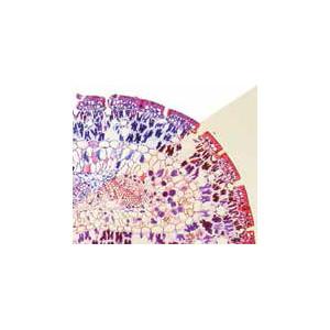 Optika Microscopio Mikroskop B-383PHiIVD, trino, phase, N-PLAN, IOS, 40x-1000x, EU, IVD
