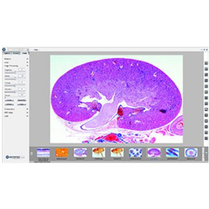 "Euromex Fotocamera CMEX-1, 1.3 MP, 1/2.5"", CMOS, USB2.0"