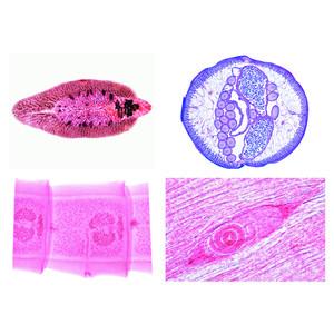 LIEDER Parasitología, serie grande (50 prep.)