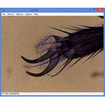 Pata de mosca común con una ampliación de 400x.