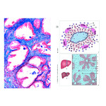 LIEDER Human diseases (Pathology), Basic Set of 6 slides, Student Set