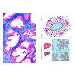 LIEDER Malattie dell'uomo (patologia), set base per la scuola (6 preparati)