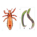 LIEDER Parasites of man and animals, Supplementary Set of 12 slides, Student Set